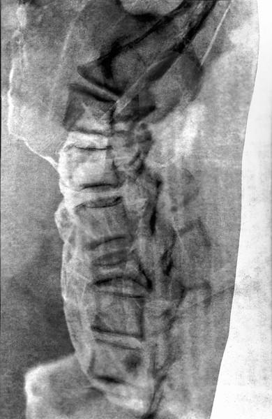 Photogram X-Ray 2