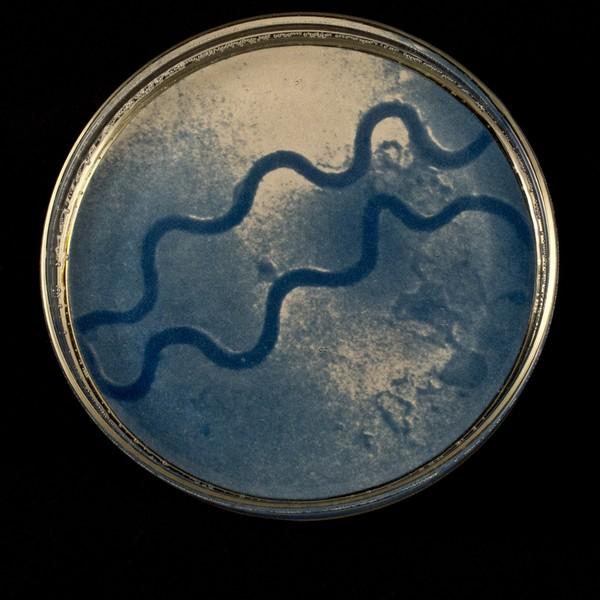 Syphilis One