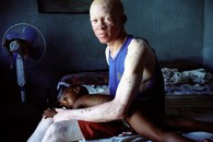 Ghosts: Albinism in Tanzania